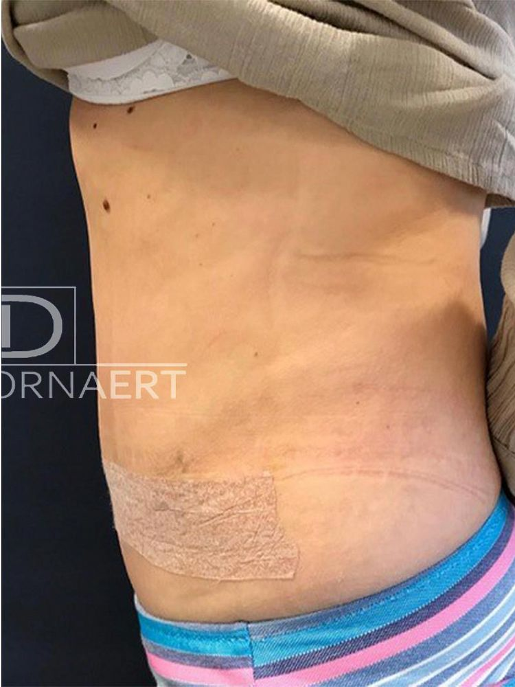 Tummy Tuck Surgery Abdominoplasty After BFS
