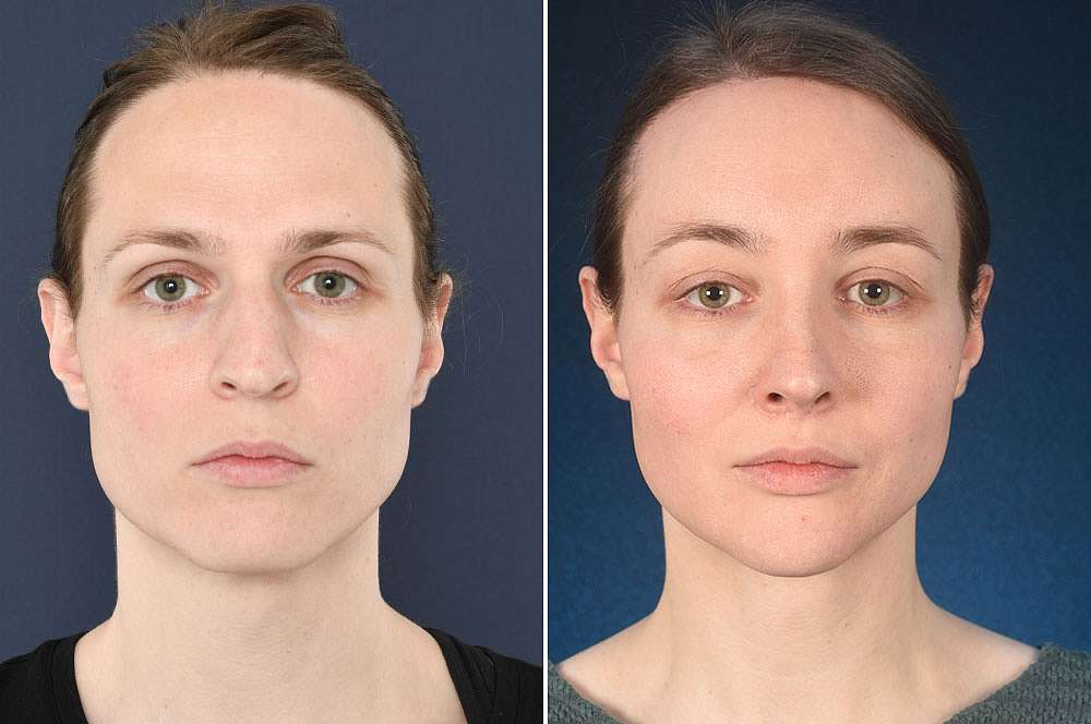 Simone voor en na Facial Feminization Surgery