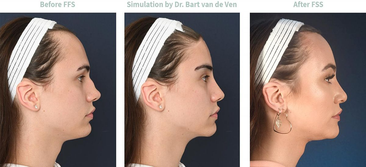 Foto simulatie Facial Feminization Surgery Maddy
