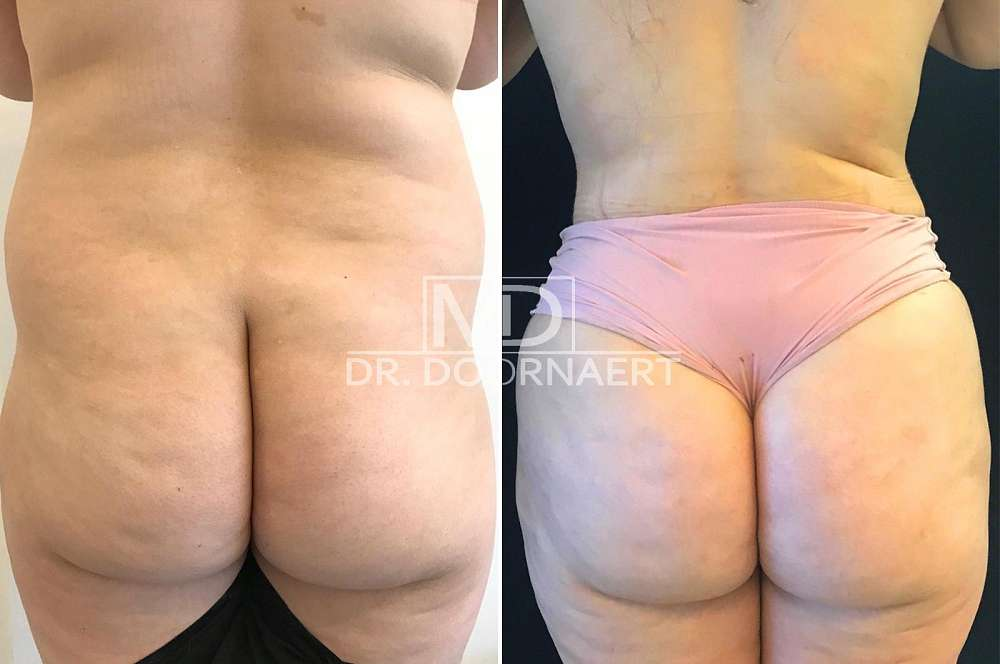 Hip and butt augmentation - Lipofilling voor en na Body Feminization Surgery