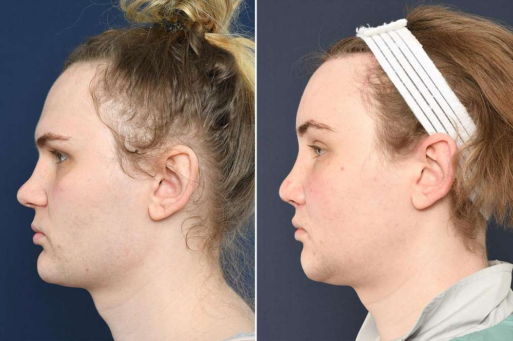 Evelyn before and after Facial Feminization Surgery