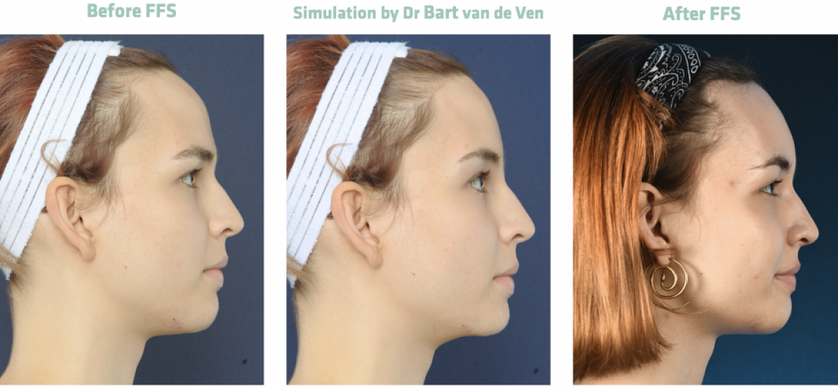 Picture simulation Facial Feminization Surgery Franka