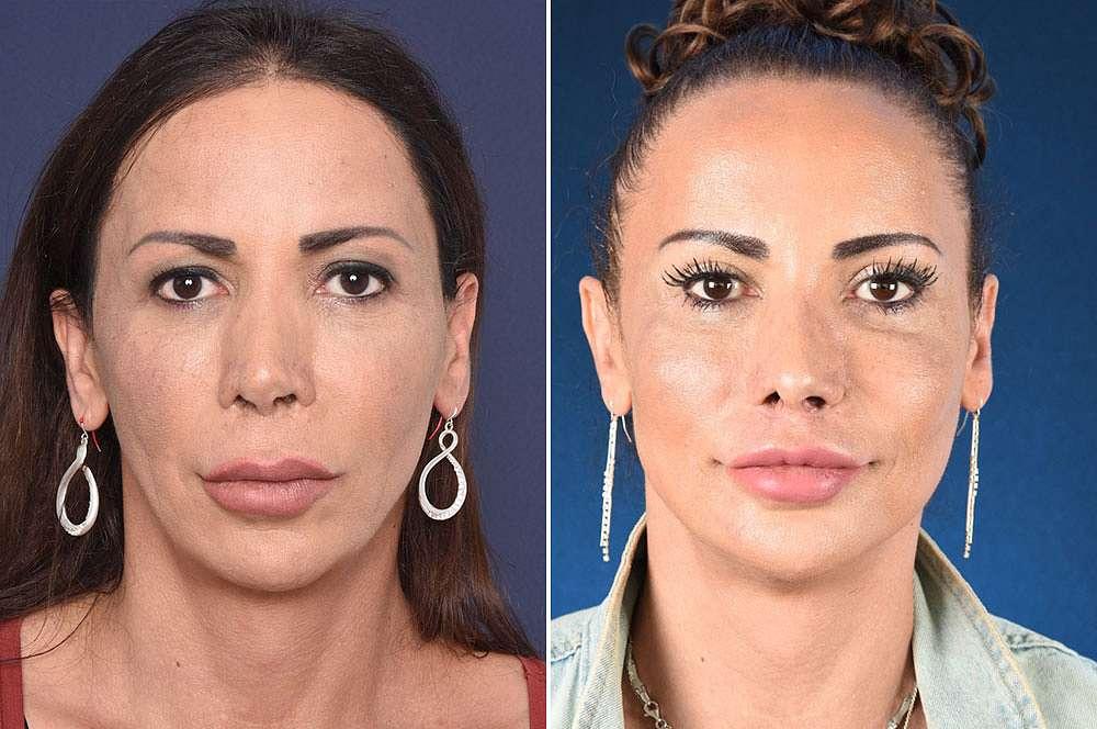 Ceren voor en na Facial Feminization Surgery