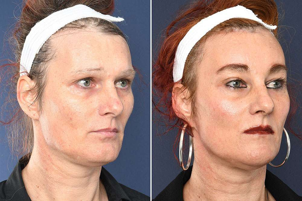 Jessica before and after Facial Feminization Surgery