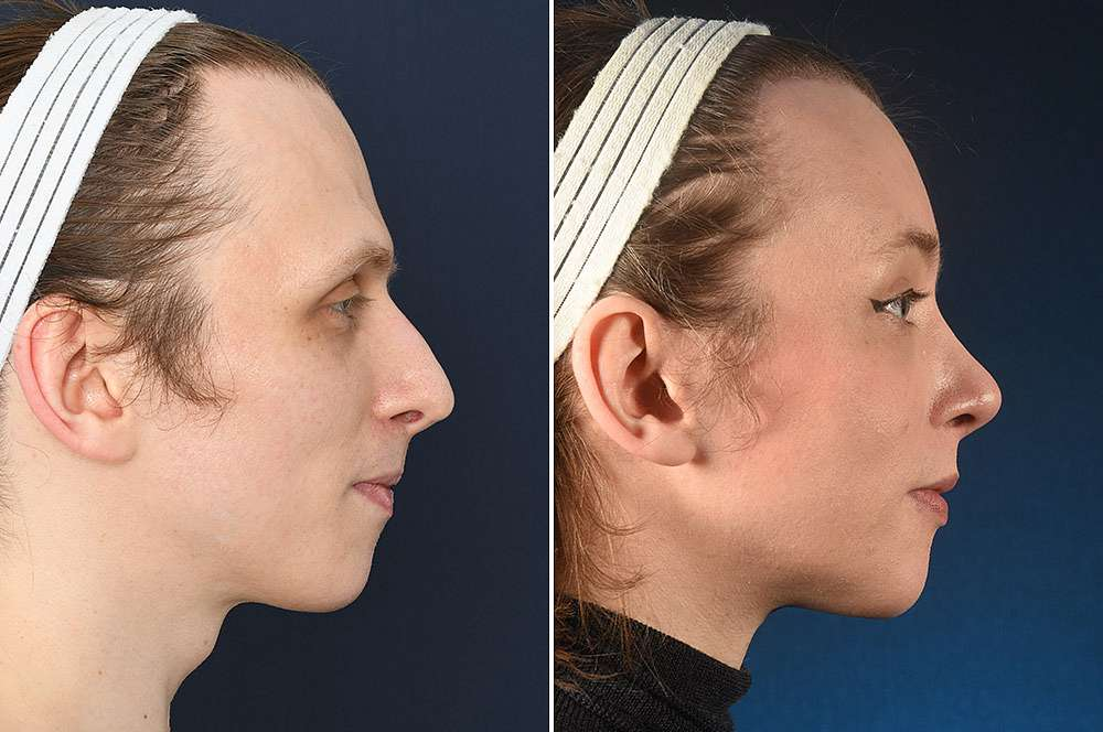 Demelza voor en na Facial Feminization Surgery