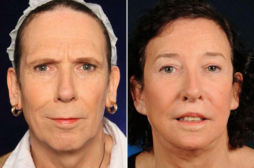 Lana vor und nach der Feminisierung des Gesichts