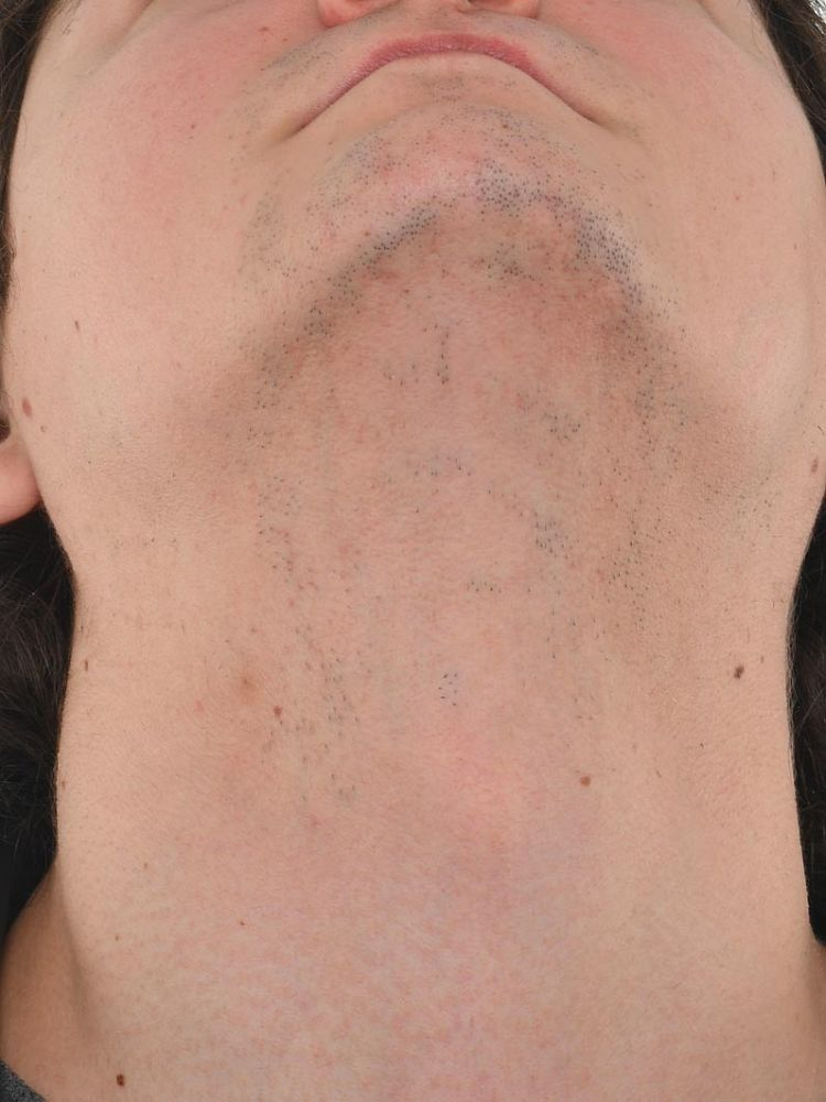 Result after 4 sessions laser treatment after treatment