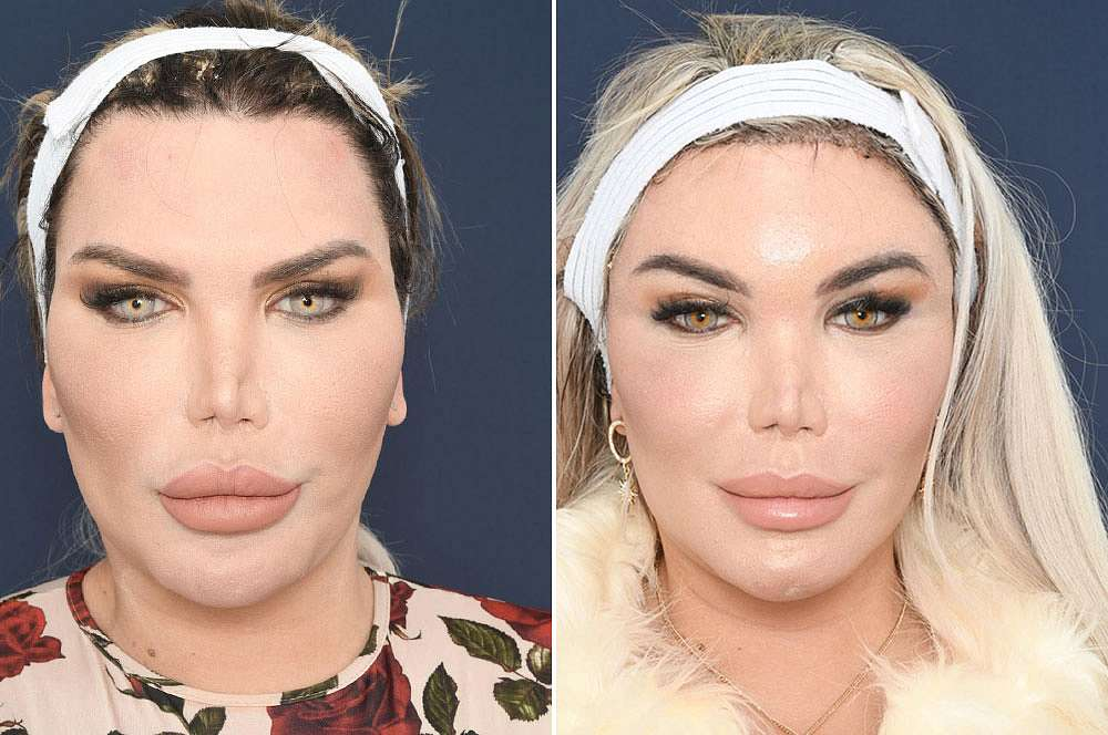 Rodrigo before and after Facial Feminization Surgery