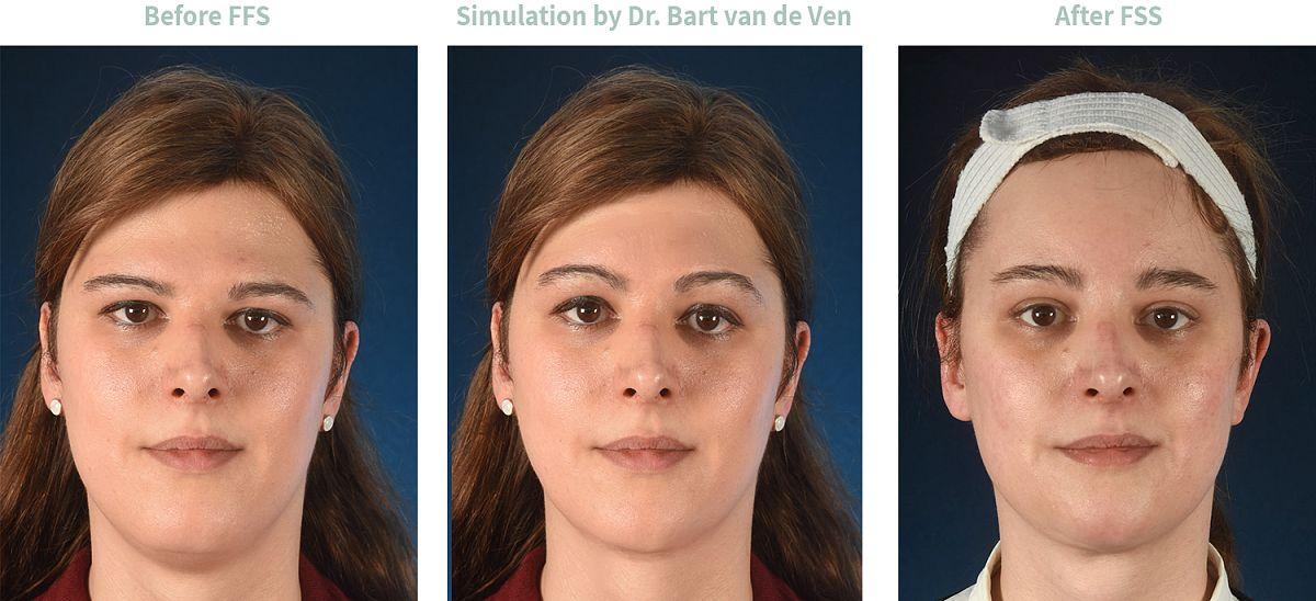 Picture simulation Facial Feminization Surgery Katharina-Sophia