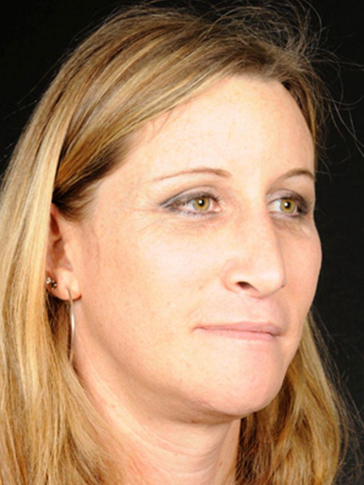 Francesca after FFS