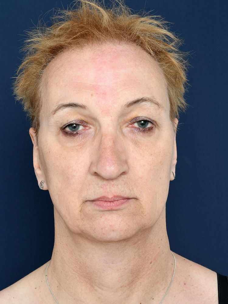 Vorher Facial Feminization Surgery Rebecca