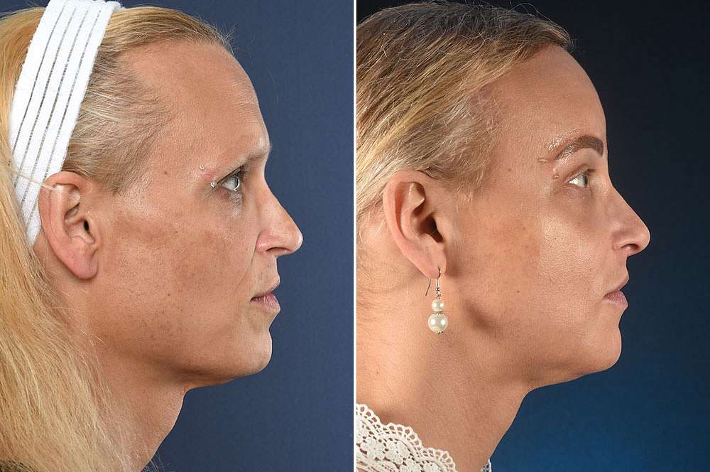 Maja voor en na Facial Feminization Surgery