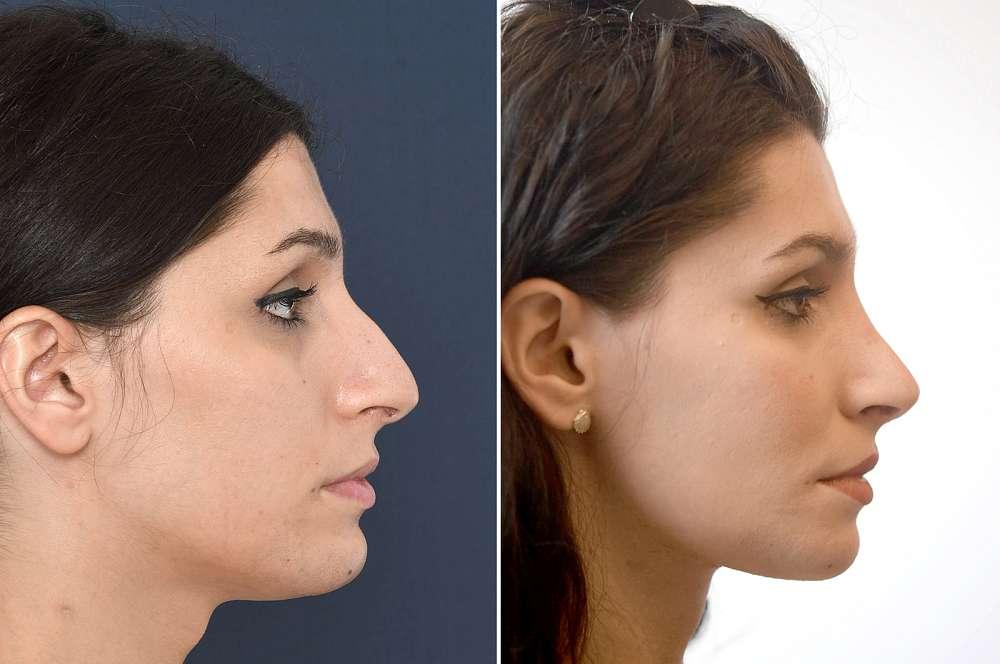 Fernanda voor en na Facial Feminization Surgery
