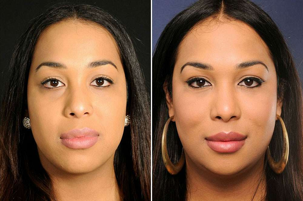 Zahra voor en na Facial Feminization Surgery