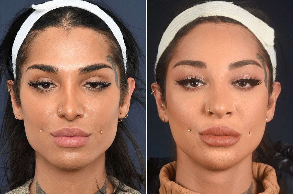 Alev before and after Facial Feminization Surgery
