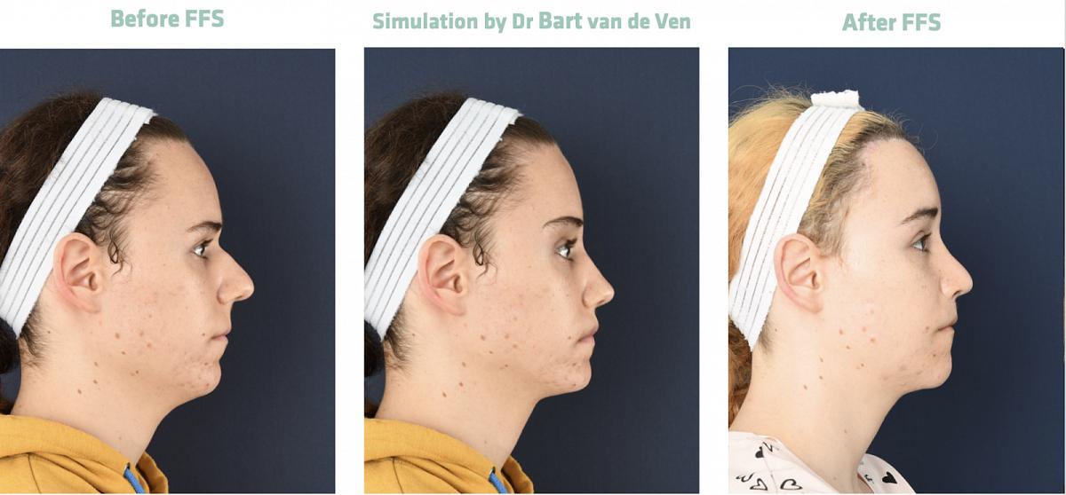 Picture simulation Facial Feminization Surgery Felina