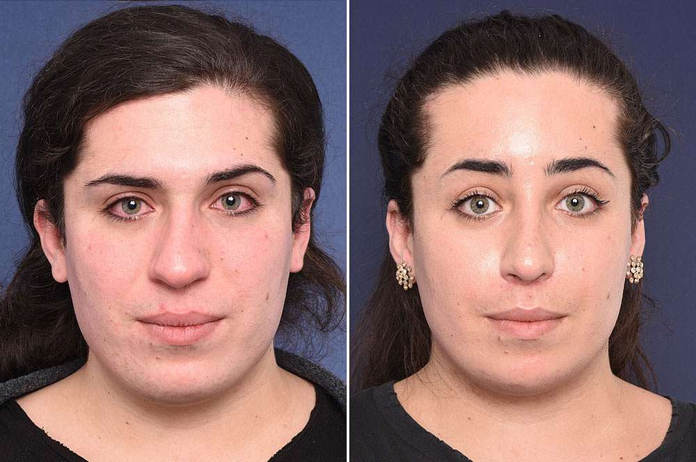 Jolina before and after Facial Feminization Surgery