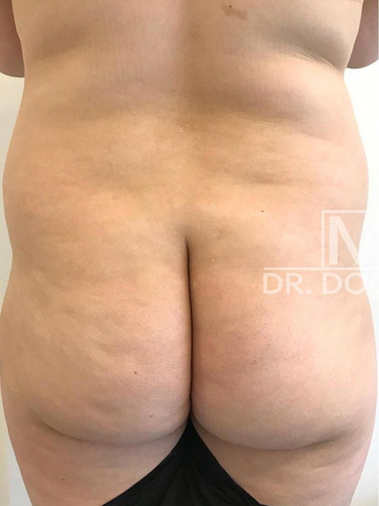 Hip and butt augmentation - Lipofilling Before BFS