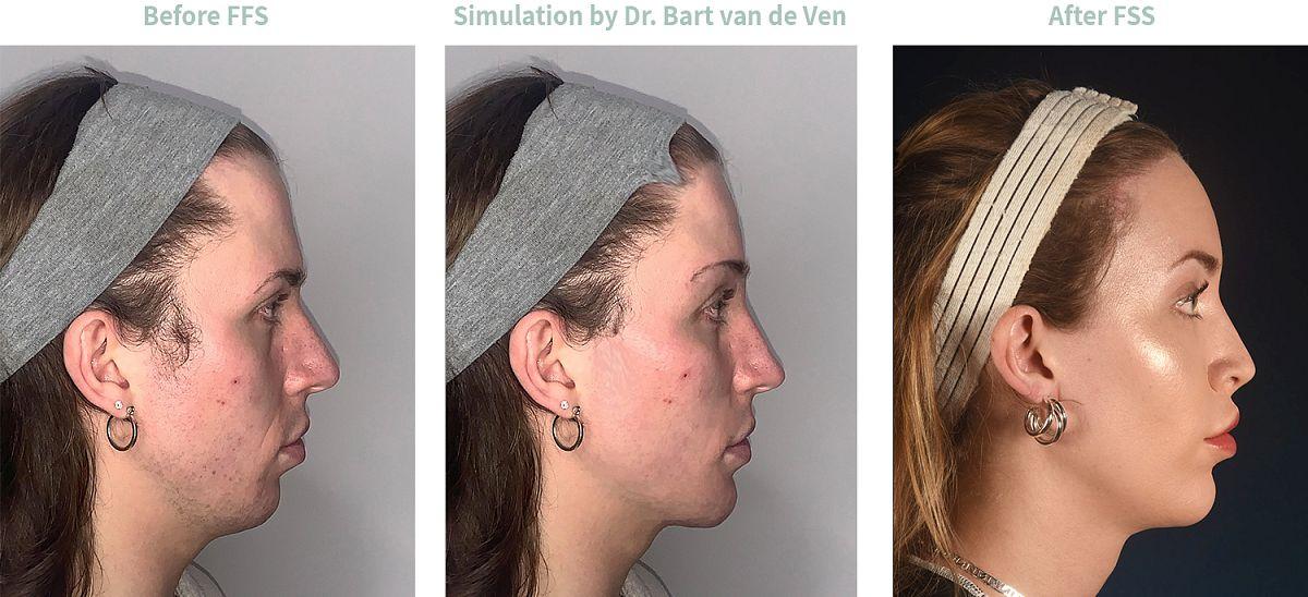 Picture simulation Facial Feminization Surgery Eden
