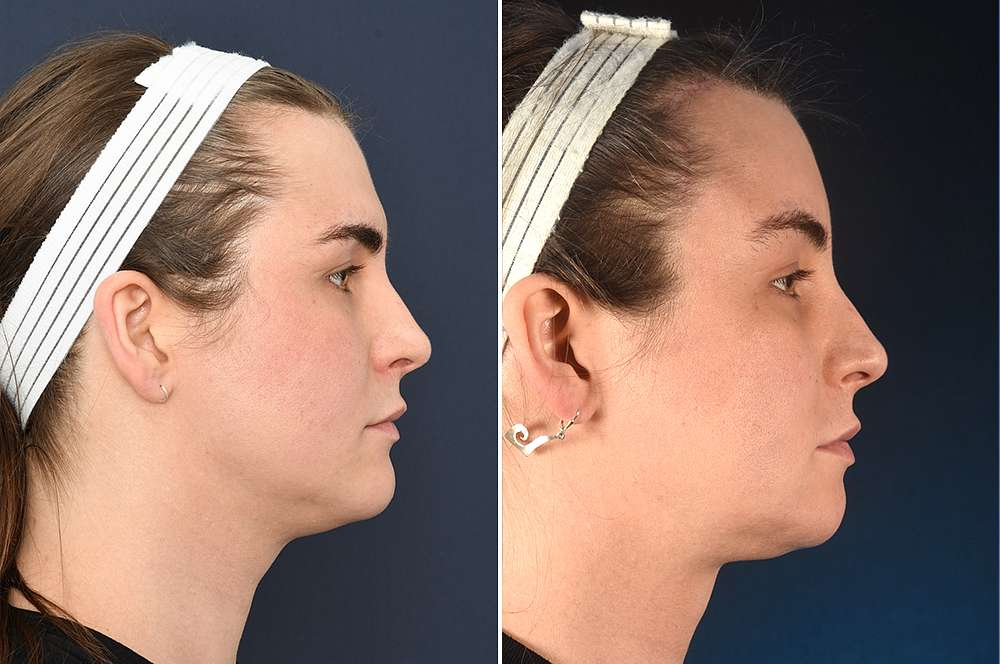 Thea before and after Facial Feminization Surgery