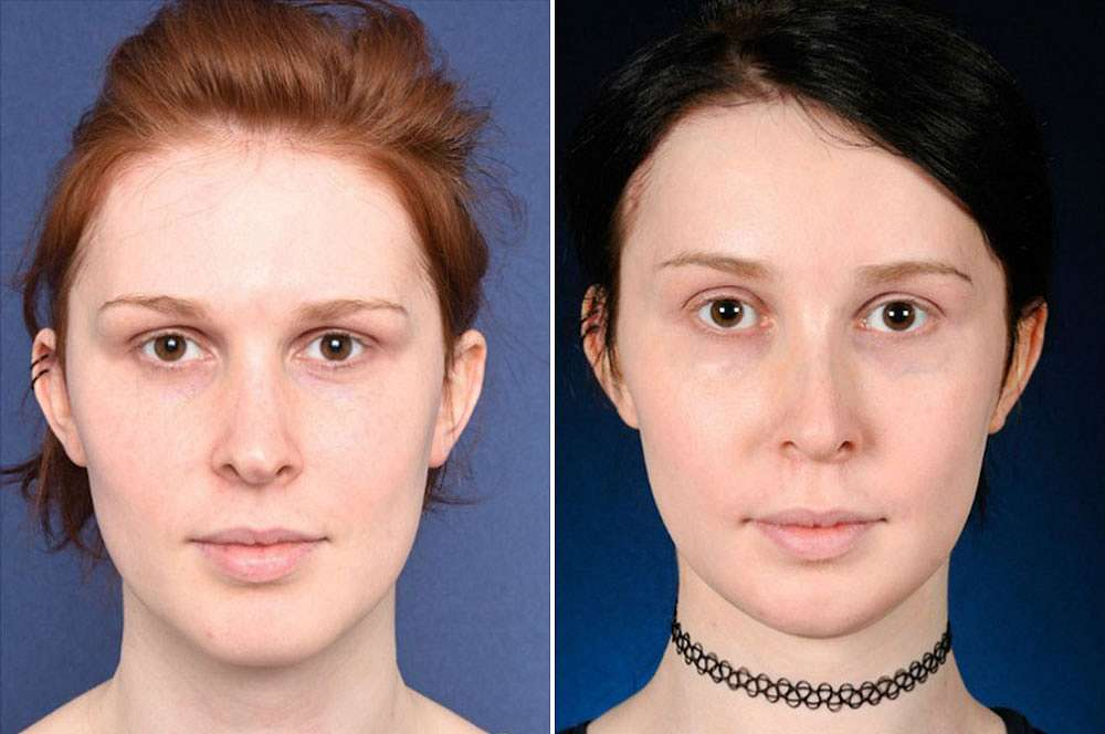 Iris before and after Facial Feminization Surgery