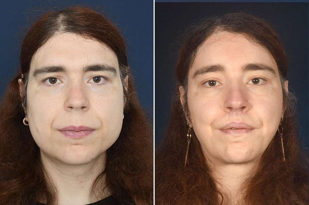 Nicole voor en na Facial Feminization Surgery