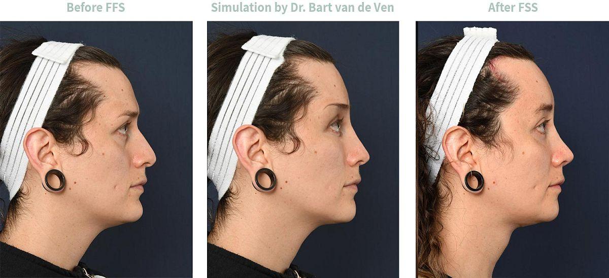 Picture simulation Facial Feminization Surgery Emilia