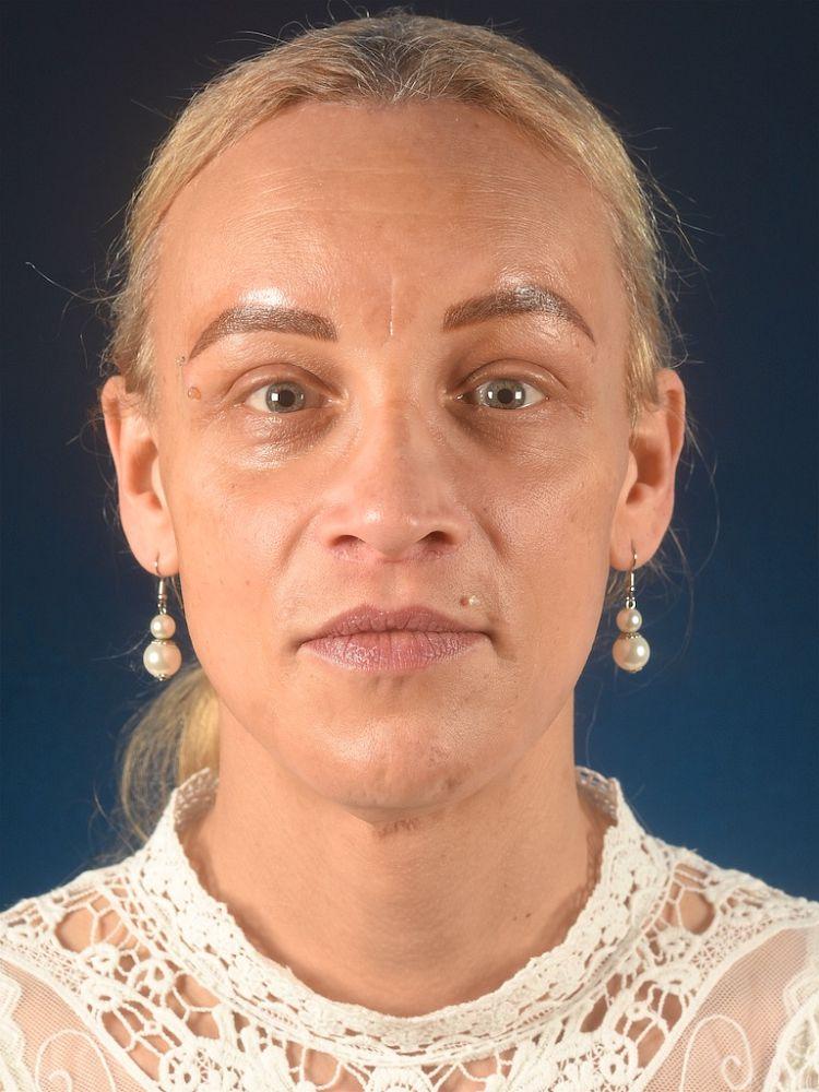 Maja after FFS