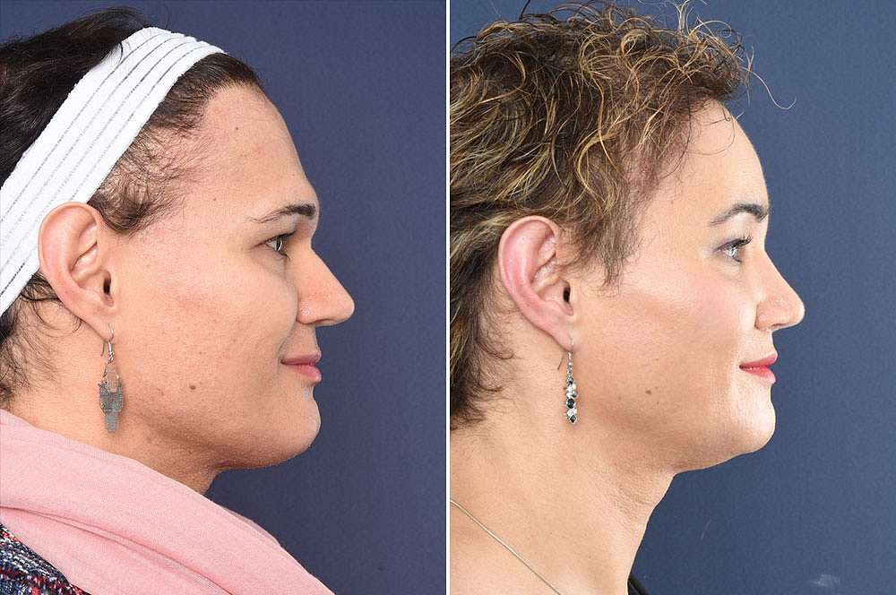 Sarah voor en na Facial Feminization Surgery