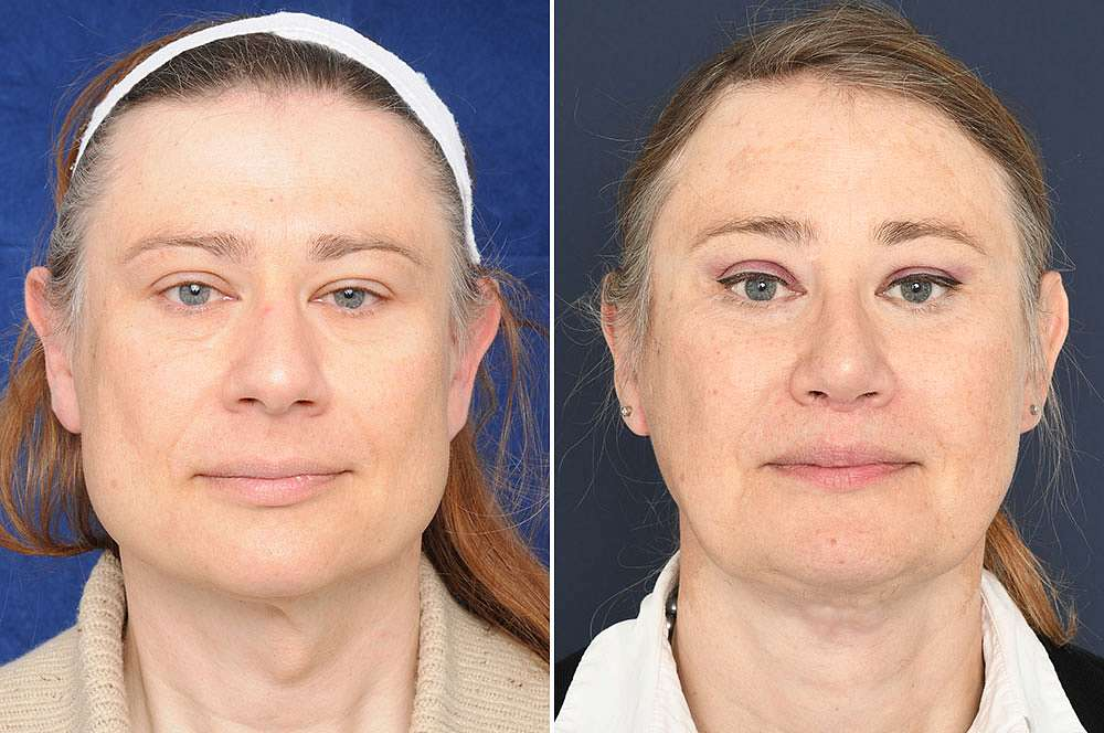 Hannah voor en na Facial Feminization Surgery