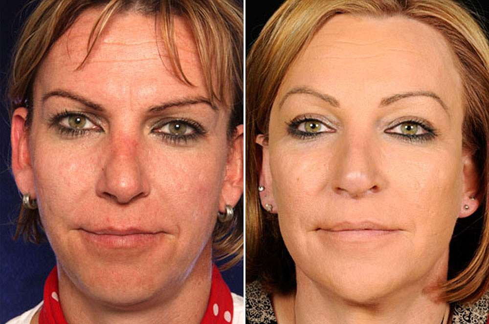 Lena voor en na Facial Feminization Surgery