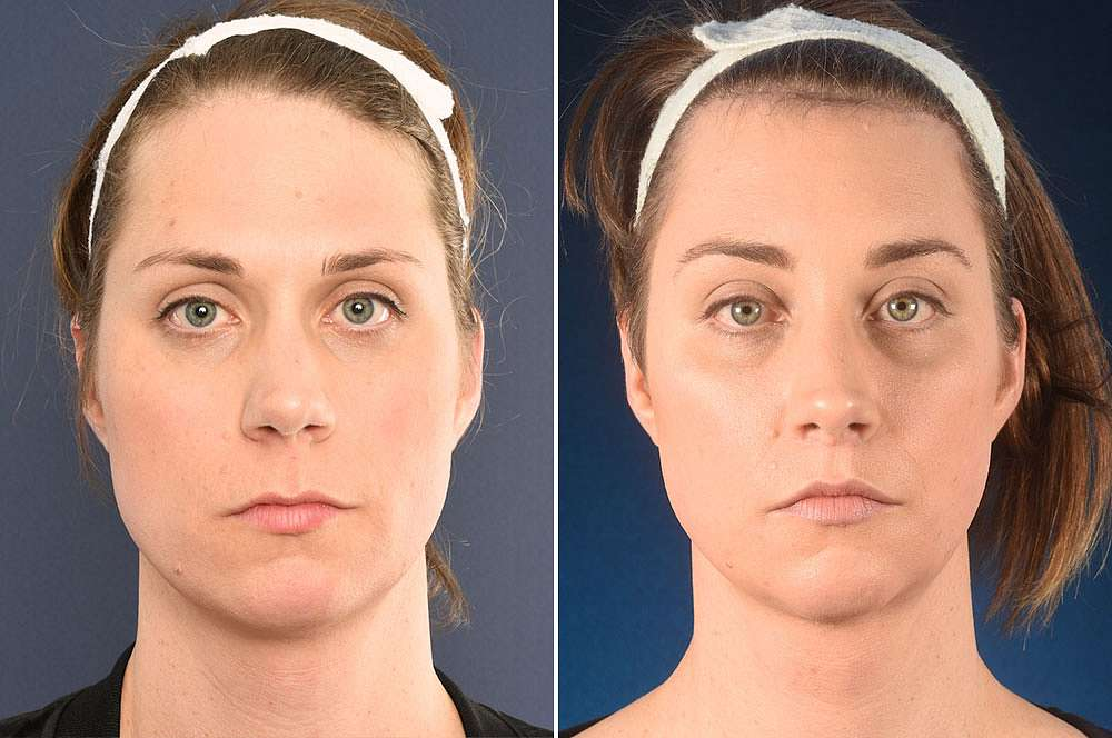 Elle voor en na Facial Feminization Surgery