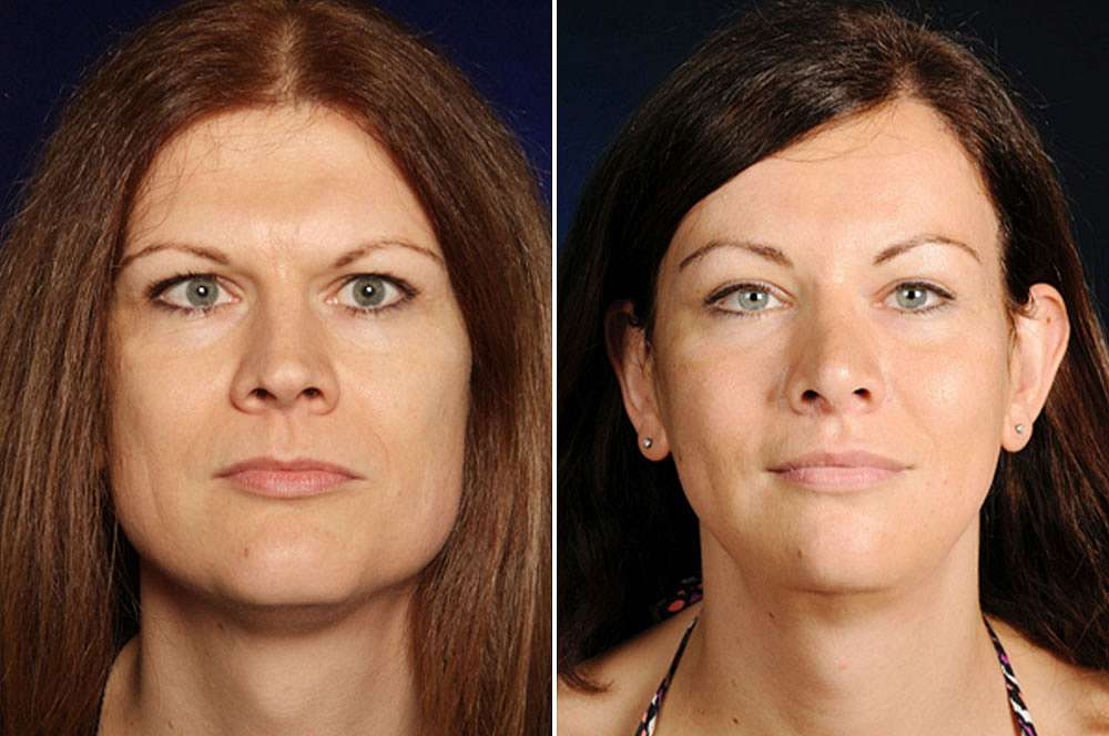 Lydia before and after Facial Feminization Surgery