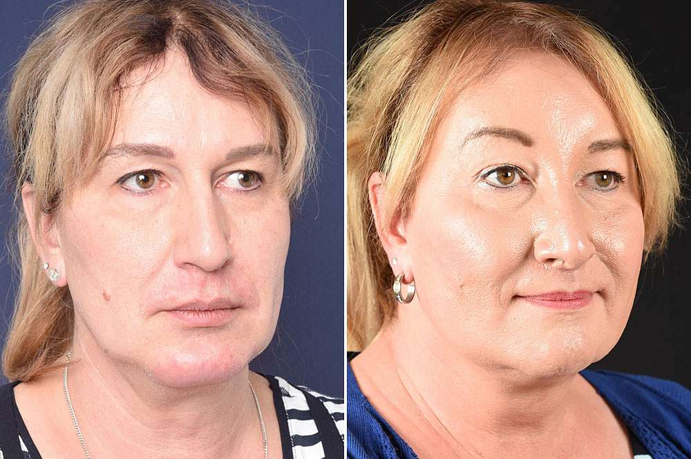 Olivia vor und nach der Feminisierung des Gesichts