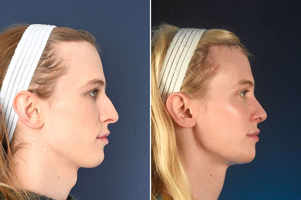 Lyra voor en na Facial Feminization Surgery