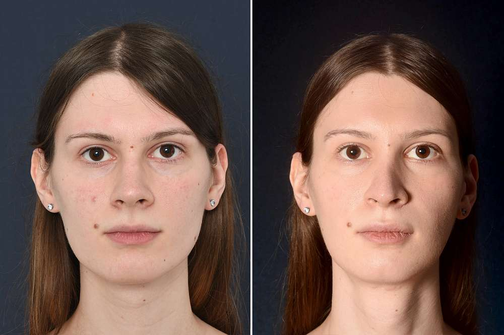 Nicole before and after Facial Feminization Surgery