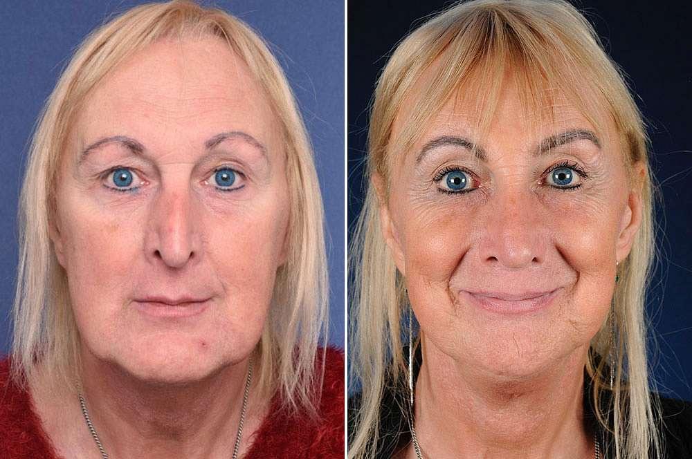 Danyella voor en na Facial Feminization Surgery