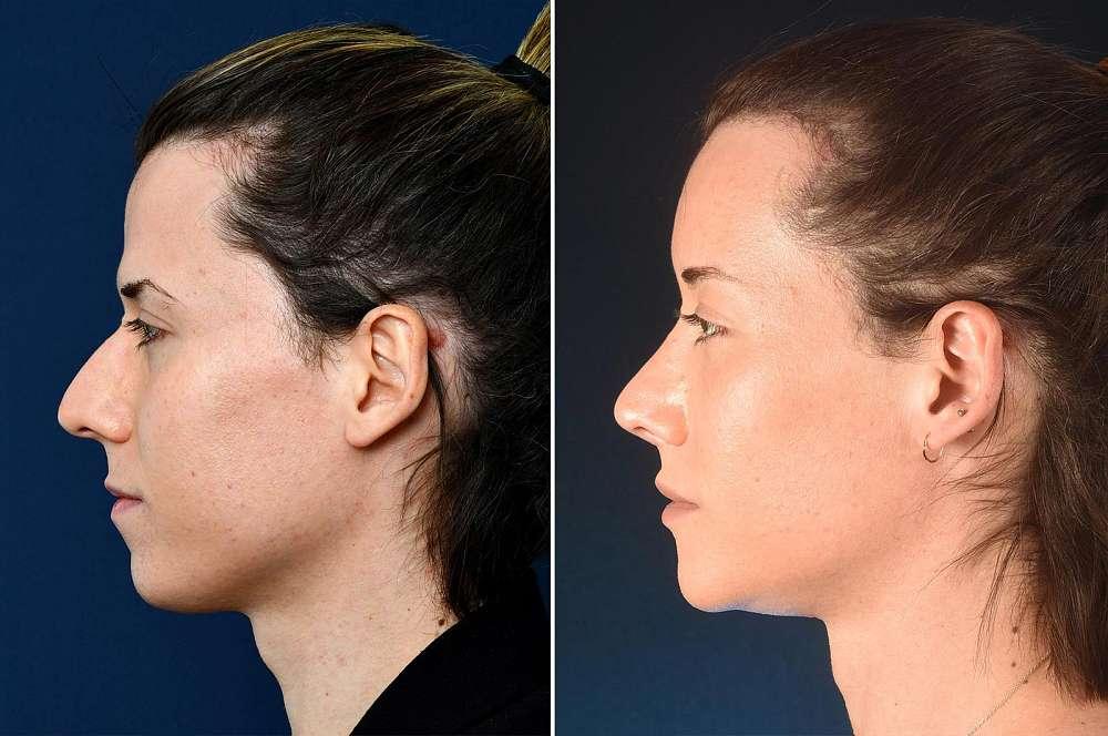 Jamina before and after Facial Feminization Surgery