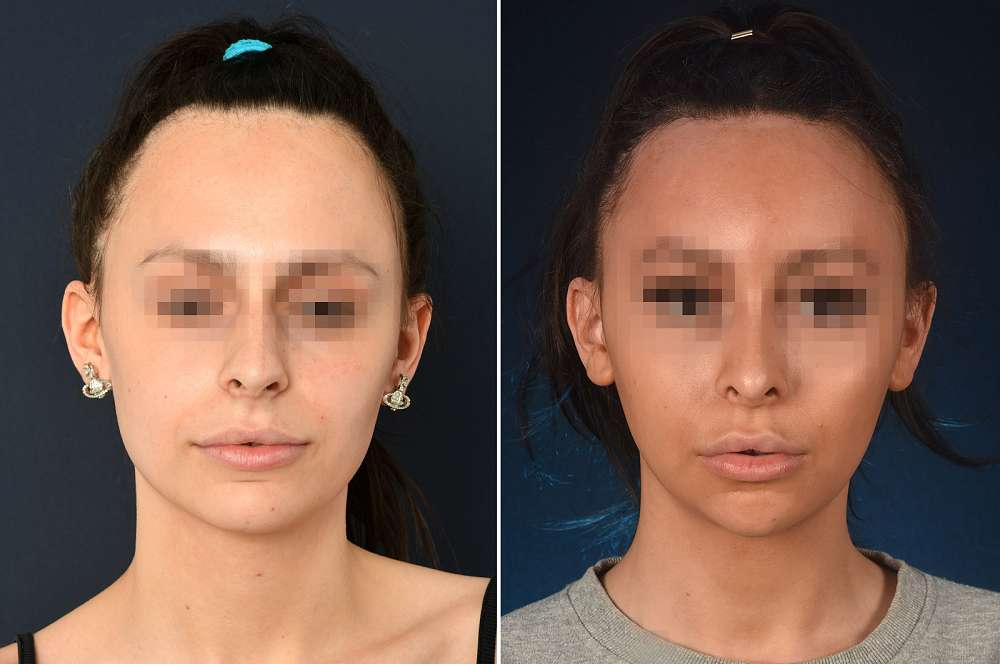 T.D. voor en na Facial Feminization Surgery