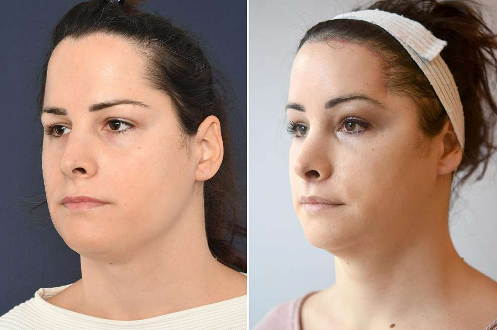 Annalena before and after Facial Feminization Surgery