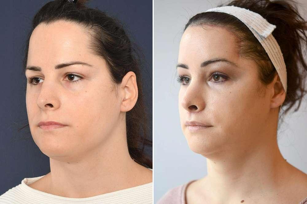 Annalena voor en na Facial Feminization Surgery
