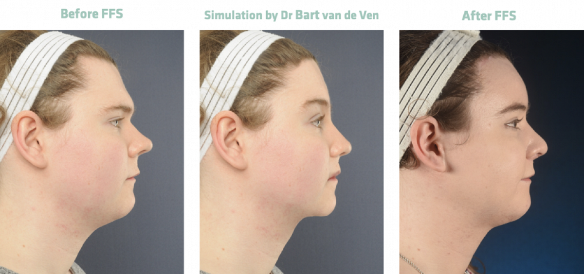 Picture simulation Facial Feminization Surgery Emily