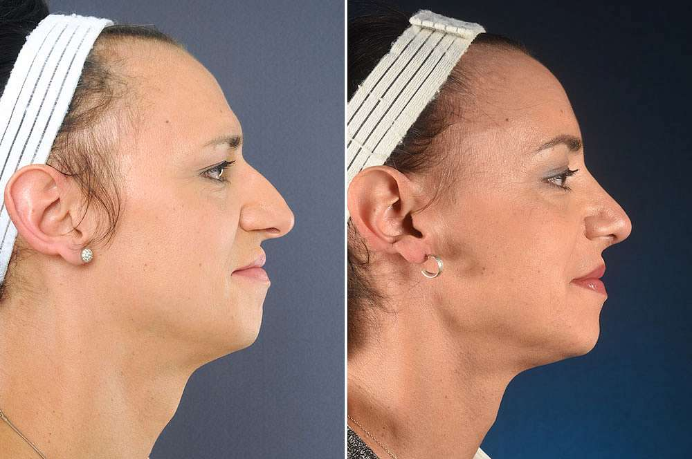 Anna before and after Facial Feminization Surgery