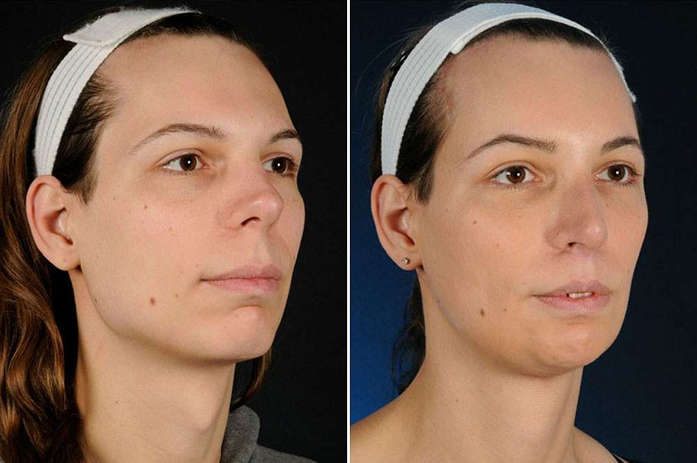 Valerie before and after Facial Feminization Surgery