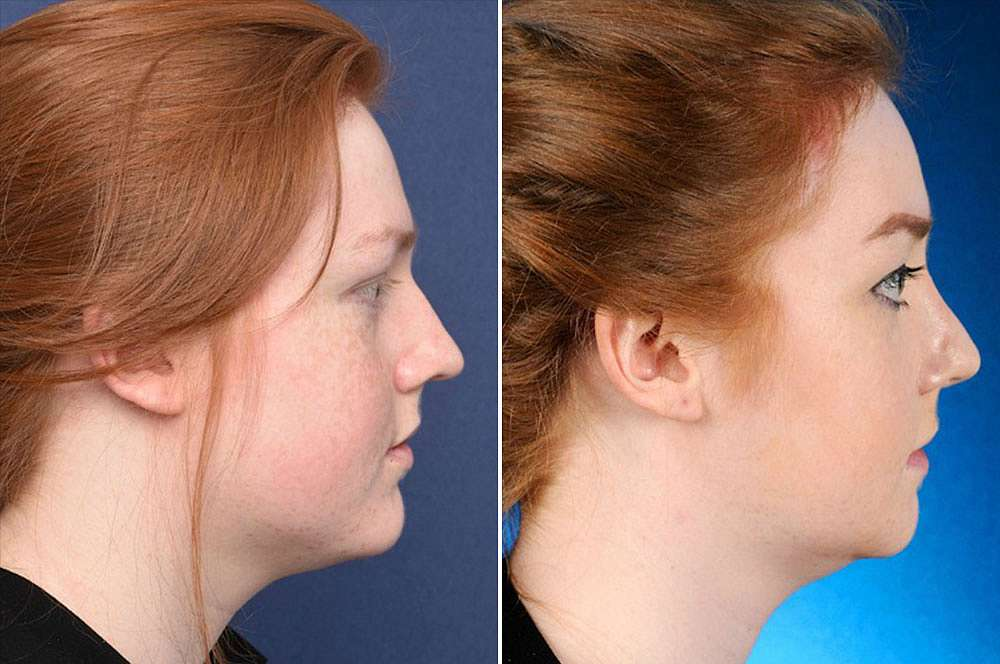 Amber voor en na Facial Feminization Surgery