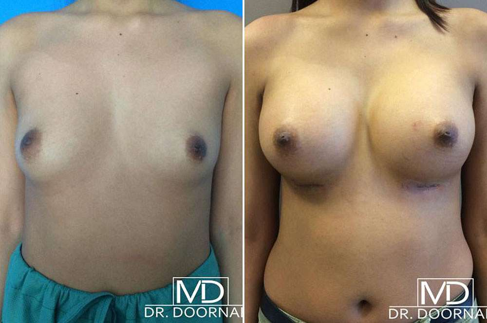Breast implants - Mtf voor en na Body Feminization Surgery