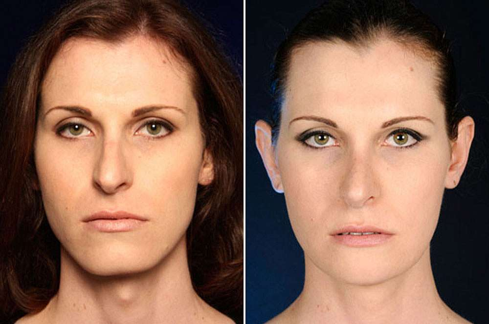 Jackie before and after Facial Feminization Surgery