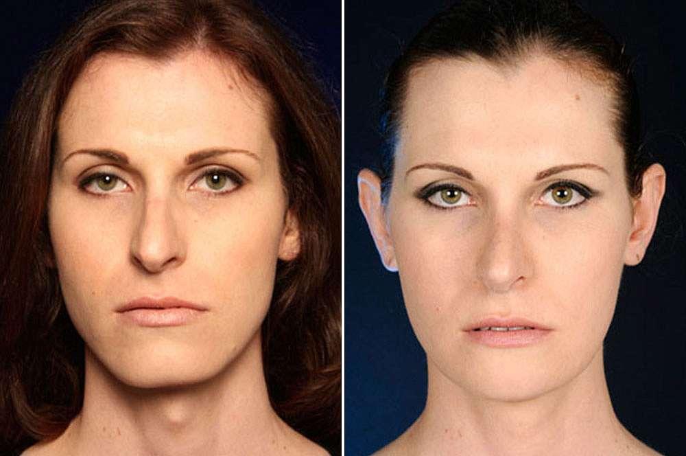 Jackie voor en na Facial Feminization Surgery