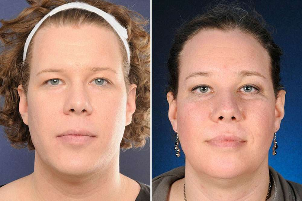 Lucia voor en na Facial Feminization Surgery