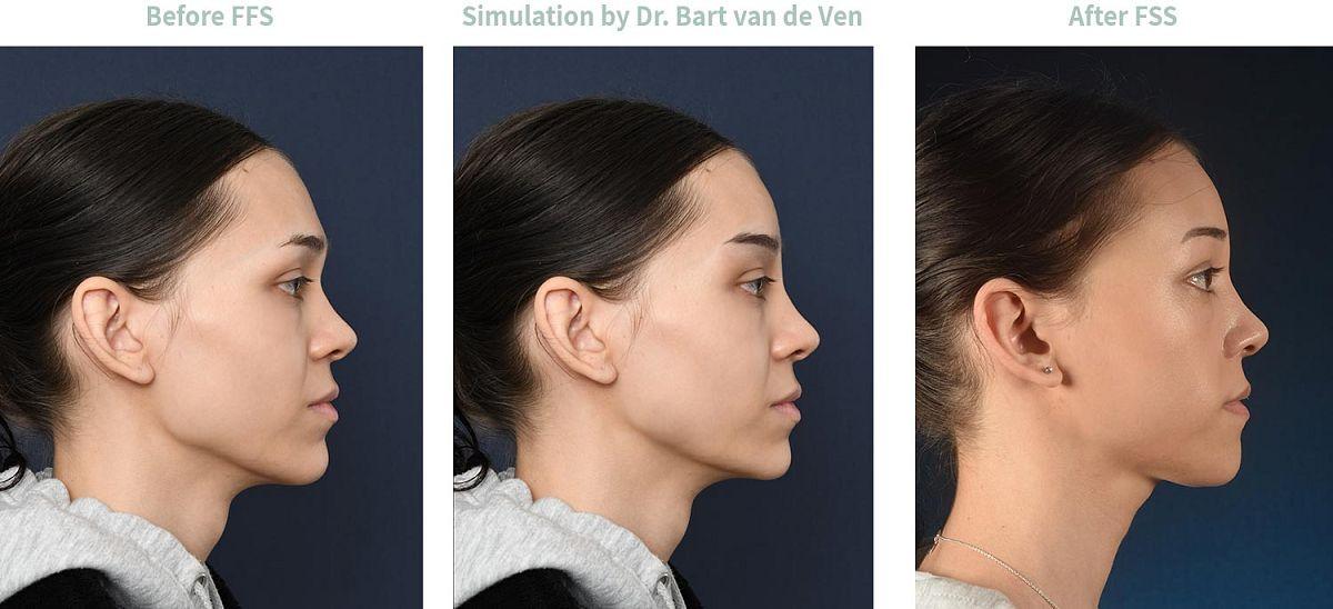 Picture simulation Facial Feminization Surgery Sophia